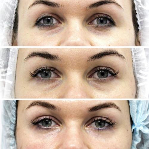 Убрать морщины под глазами косметология цены. Все способы избавиться от морщин вокруг глаз